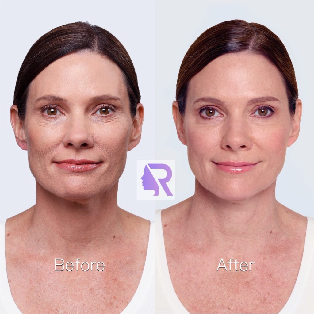 Instructions Before And After Injection With Facial Fillers Reverza